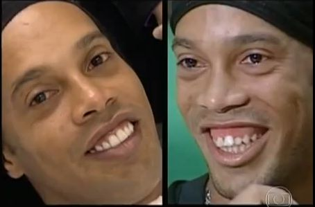 Ronaldinho before and after photos of his smile makeover